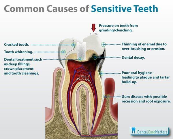 Feeling The Pain Of Sensitive Teeth Hartog